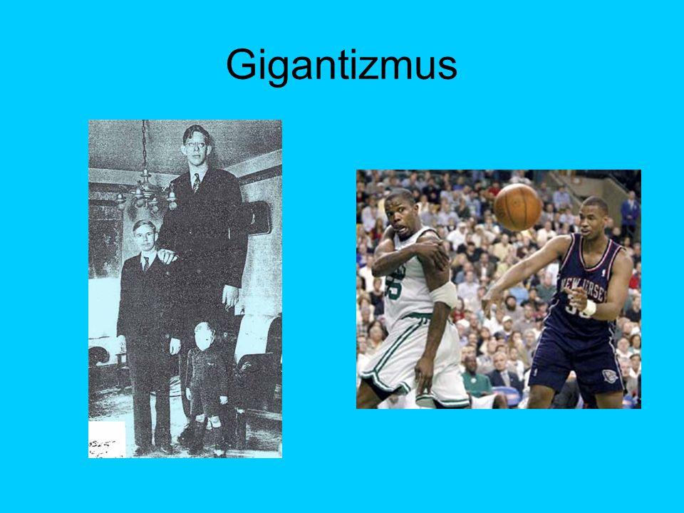 Gigantizmus