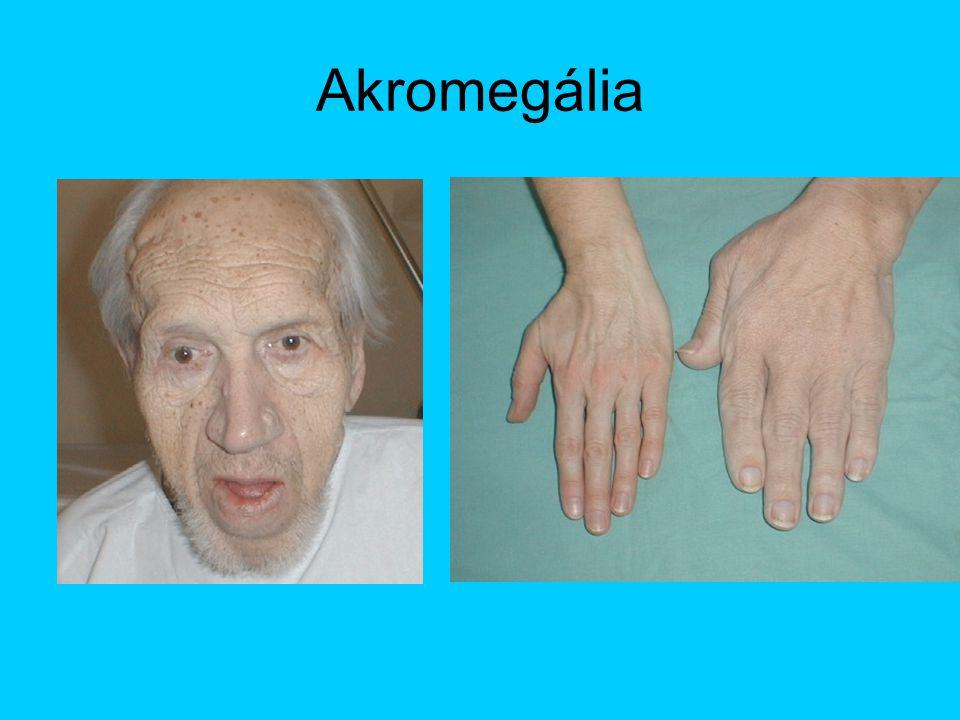 Akromegália