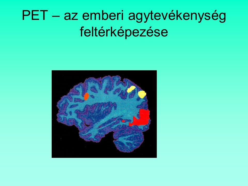 PET – az emberi agytevékenység feltérképezése