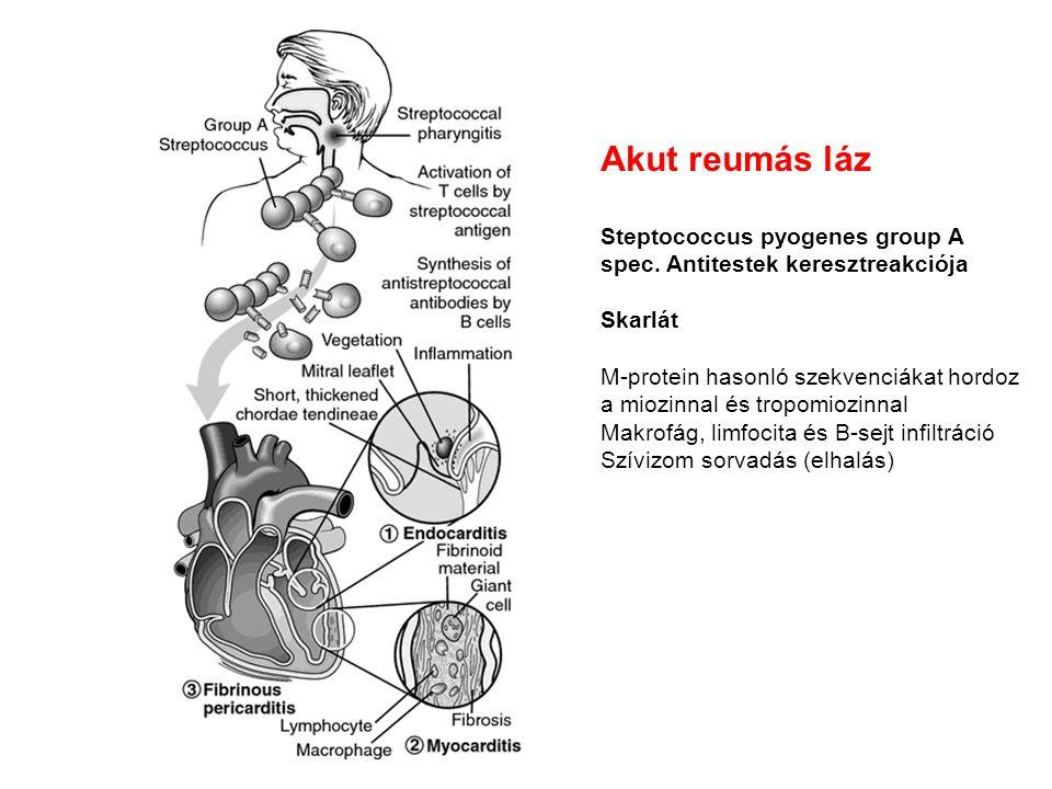 Akut reumás láz Steptococcus pyogenes group A spec. Antitestek keresztreakciója Skarlát M-protein hasonló szekvenciákat hordoz a miozinnal és tropomio