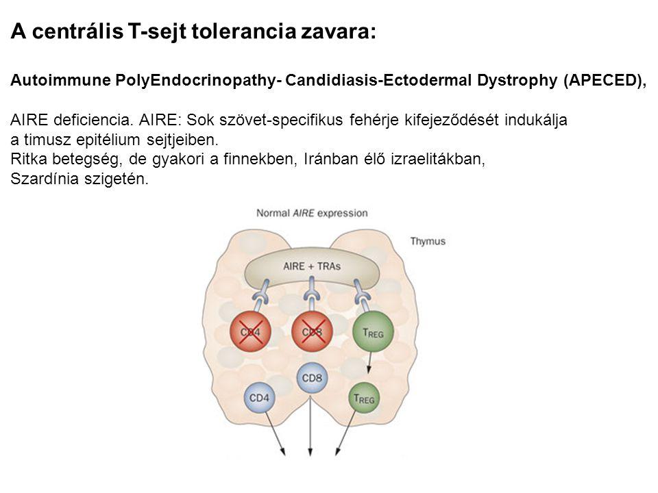 A centrális T-sejt tolerancia zavara: Autoimmune PolyEndocrinopathy- Candidiasis-Ectodermal Dystrophy (APECED), AIRE deficiencia. AIRE: Sok szövet-spe