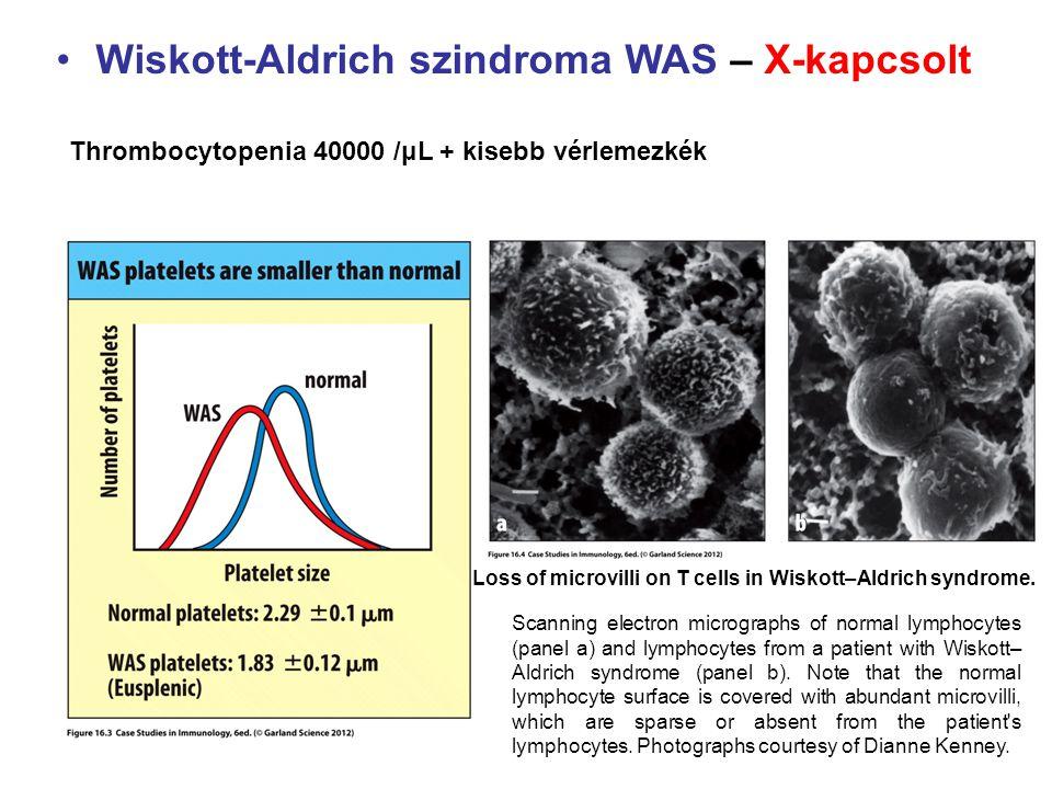 Wiskott-Aldrich szindroma WAS – X-kapcsolt Thrombocytopenia 40000 /μL + kisebb vérlemezkék Loss of microvilli on T cells in Wiskott–Aldrich syndrome.