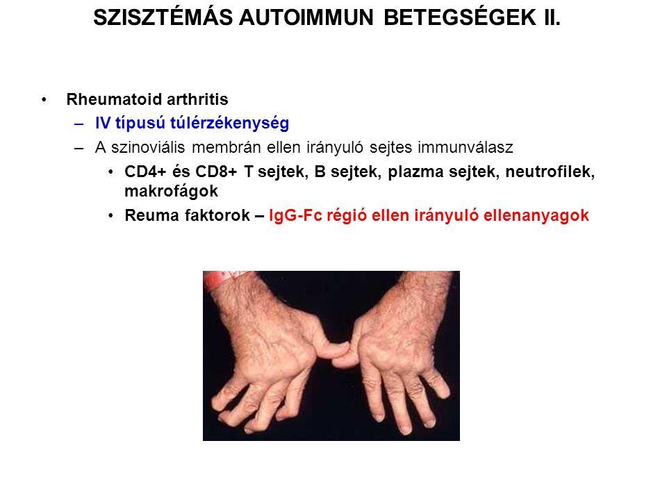 SZISZTÉMÁS AUTOIMMUN BETEGSÉGEK II. Rheumatoid arthritis –IV típusú túlérzékenység –A szinoviális membrán ellen irányuló sejtes immunválasz CD4+ és CD