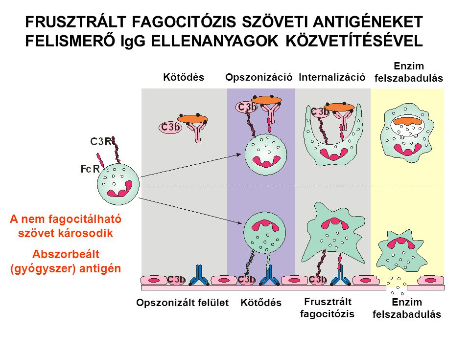 A nem fagocitálható szövet károsodik Abszorbeált (gyógyszer) antigén FRUSZTRÁLT FAGOCITÓZIS SZÖVETI ANTIGÉNEKET FELISMERŐ IgG ELLENANYAGOK KÖZVETÍTÉSÉ