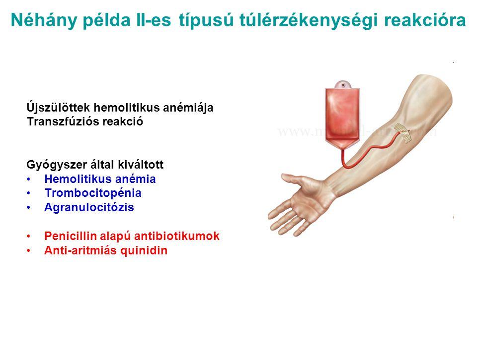 Néhány példa II-es típusú túlérzékenységi reakcióra Újszülöttek hemolitikus anémiája Transzfúziós reakció Gyógyszer által kiváltott Hemolitikus anémia