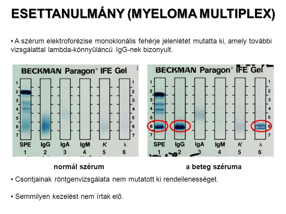 A szérum elektroforézise monoklonális fehérje jelenlétét mutatta ki, amely további vizsgálattal lambda-könnyűláncú IgG-nek bizonyult. normál szérum a
