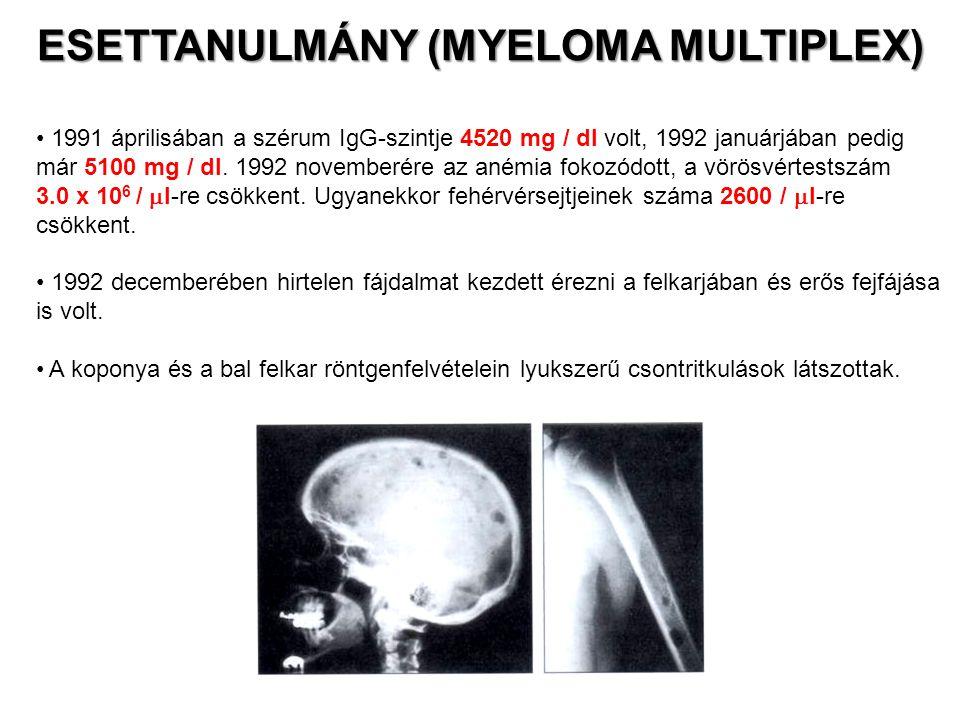 1991 áprilisában a szérum IgG-szintje 4520 mg / dl volt, 1992 januárjában pedig már 5100 mg / dl. 1992 novemberére az anémia fokozódott, a vörösvértes