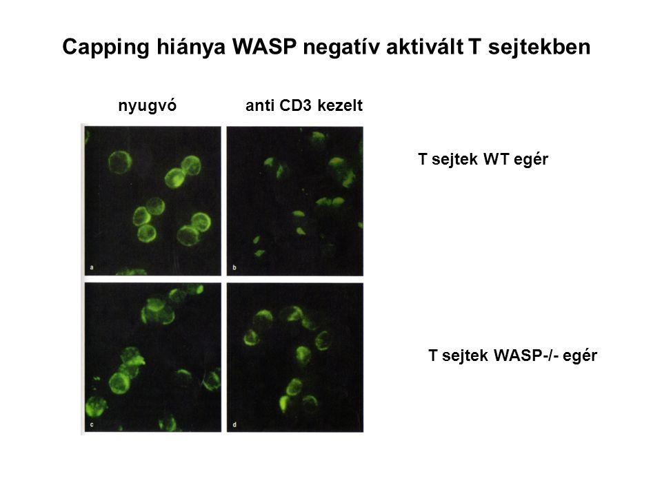 Capping hiánya WASP negatív aktivált T sejtekben T sejtek WT egér T sejtek WASP-/- egér nyugvóanti CD3 kezelt