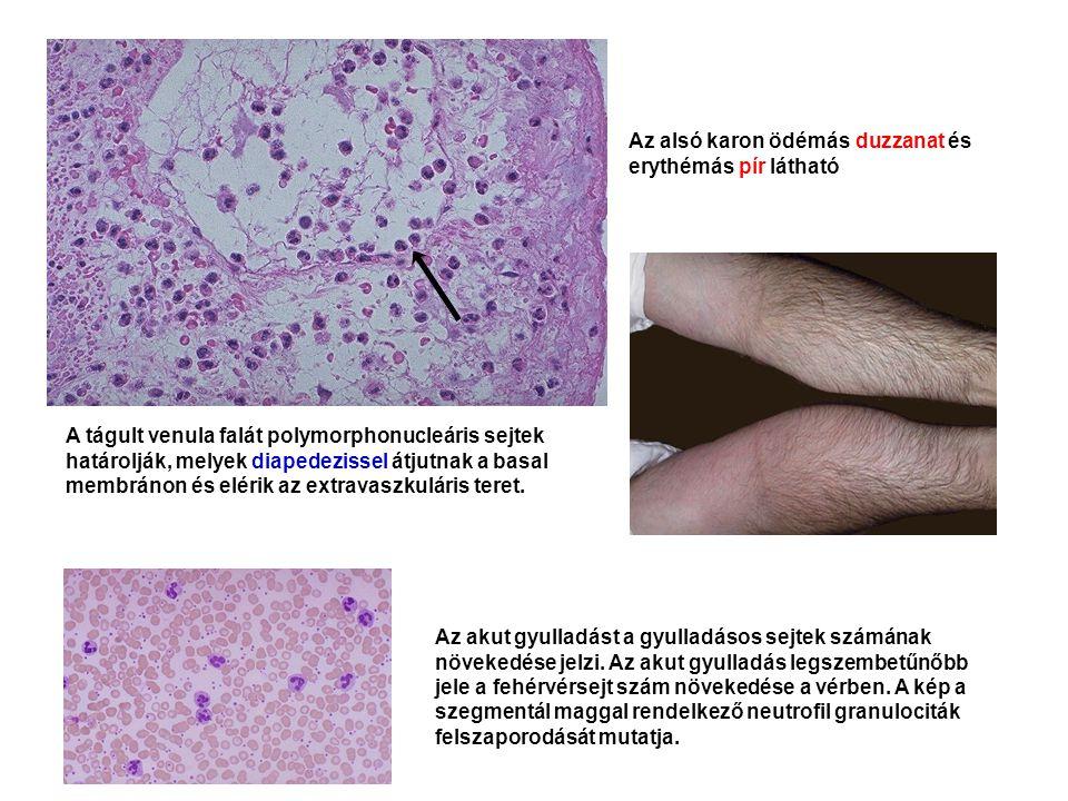Az alsó karon ödémás duzzanat és erythémás pír látható Az akut gyulladást a gyulladásos sejtek számának növekedése jelzi. Az akut gyulladás legszembet