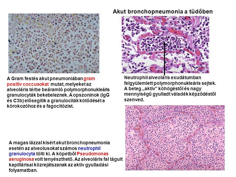 A Gram festés akut pneumoniában gram positív coccusokat mutat, melyeket az alveoláris térbe beáramló polymorphonukleáris granulocyták bekebeleznek. A