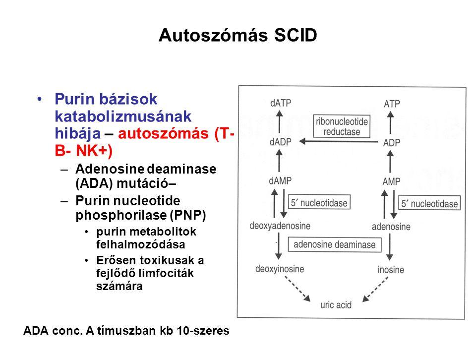 Purin bázisok katabolizmusának hibája – autoszómás (T- B- NK+) –Adenosine deaminase (ADA) mutáció– –Purin nucleotide phosphorilase (PNP) purin metabol