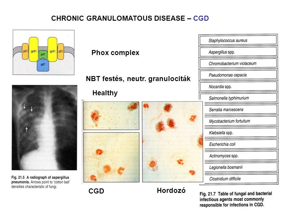 CHRONIC GRANULOMATOUS DISEASE – CGD NBT festés, neutr. granulociták Healthy CGD Hordozó Phox complex