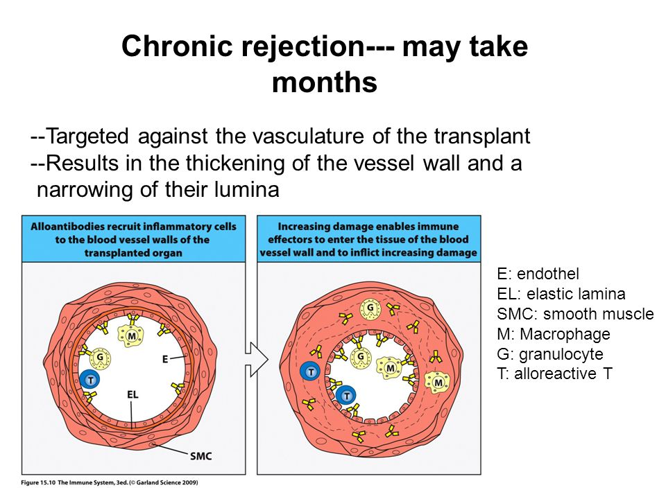 Chronic rejection--- may take months --Targeted against the vasculature of the transplant --Results in the thickening of the vessel wall and a narrowi