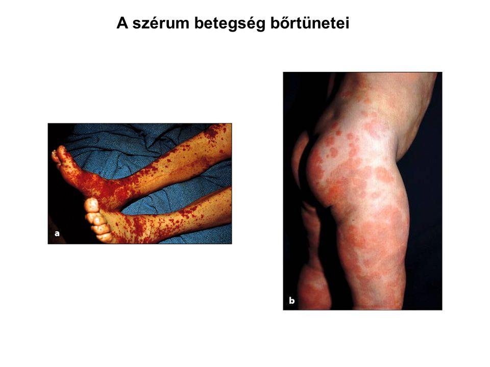 A szérum betegség bőrtünetei