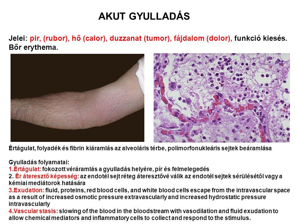 Értágulat, folyadék és fibrin kiáramlás az alveoláris térbe, polimorfonukleáris sejtek beáramlása Gyulladás folyamatai: 1.Értágulat: fokozott véráraml