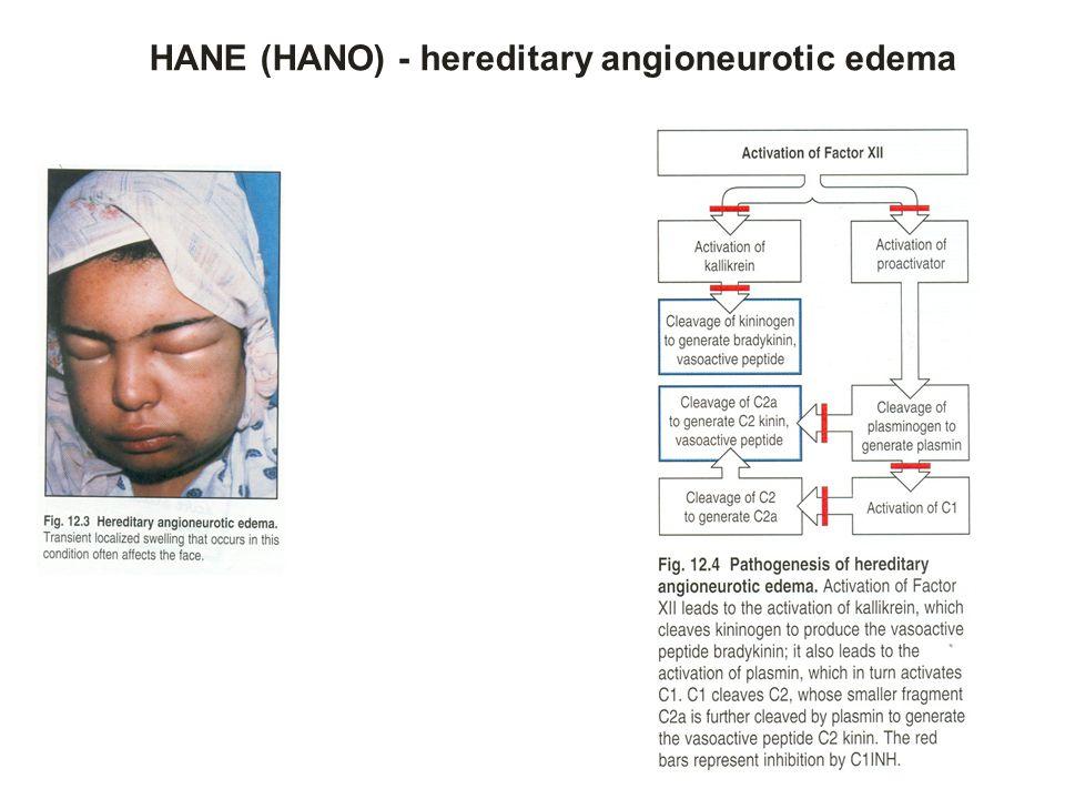 HANE (HANO) - hereditary angioneurotic edema