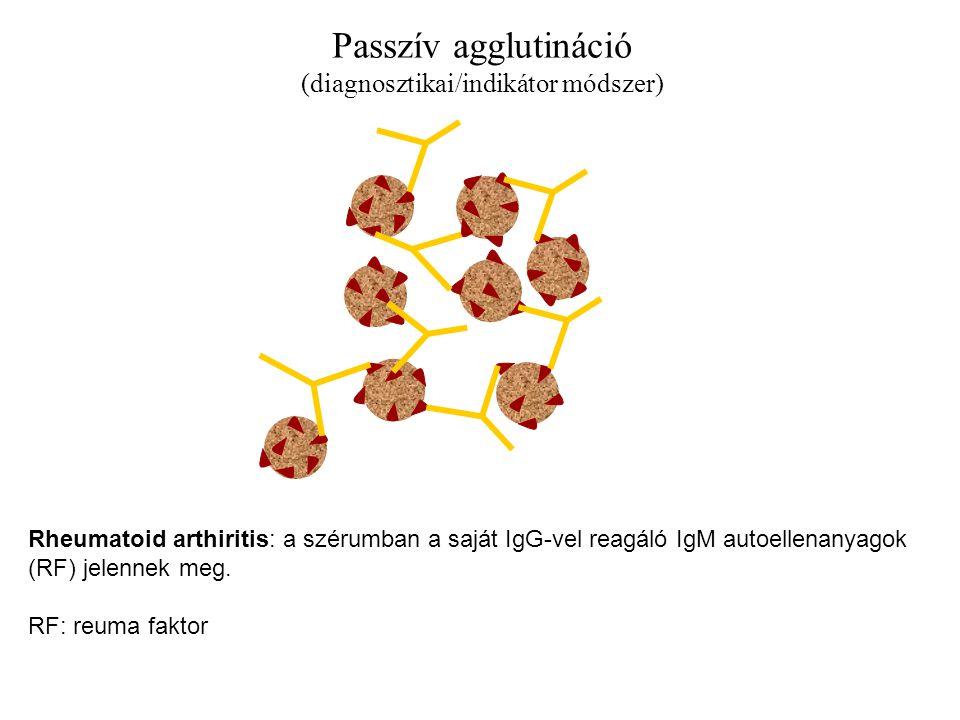 Passzív agglutináció (diagnosztikai/indikátor módszer) Rheumatoid arthiritis: a szérumban a saját IgG-vel reagáló IgM autoellenanyagok (RF) jelennek meg.