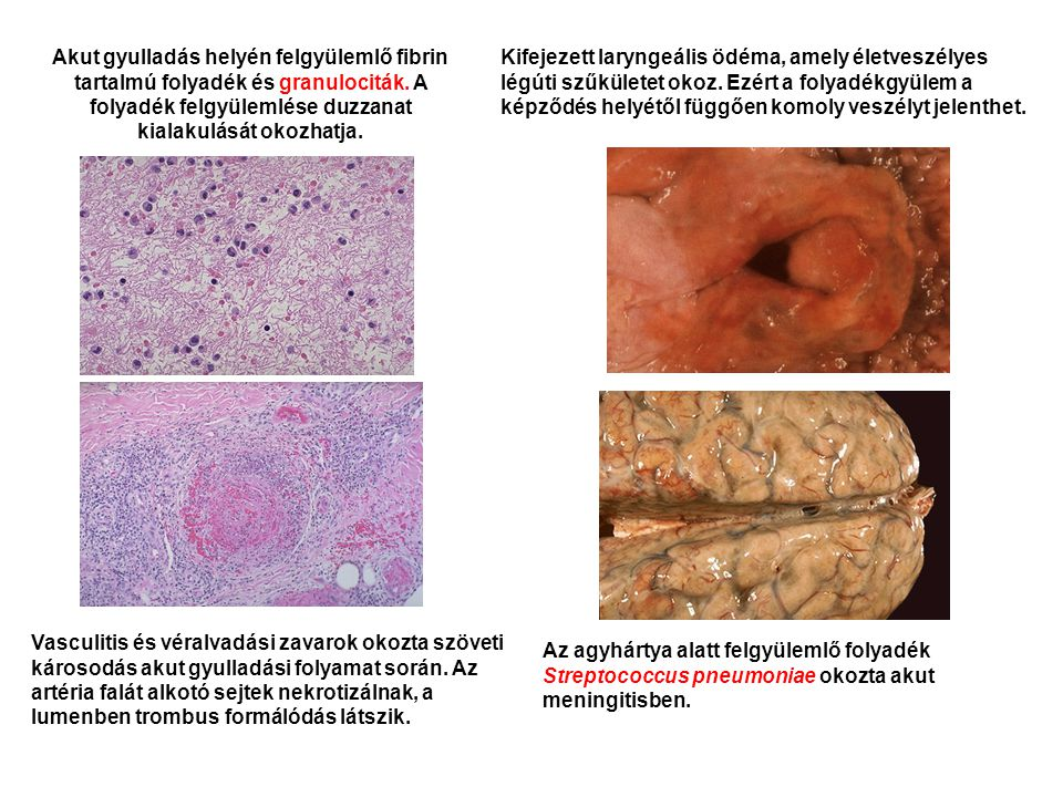 Akut gyulladás helyén felgyülemlő fibrin tartalmú folyadék és granulociták. A folyadék felgyülemlése duzzanat kialakulását okozhatja. Vasculitis és vé