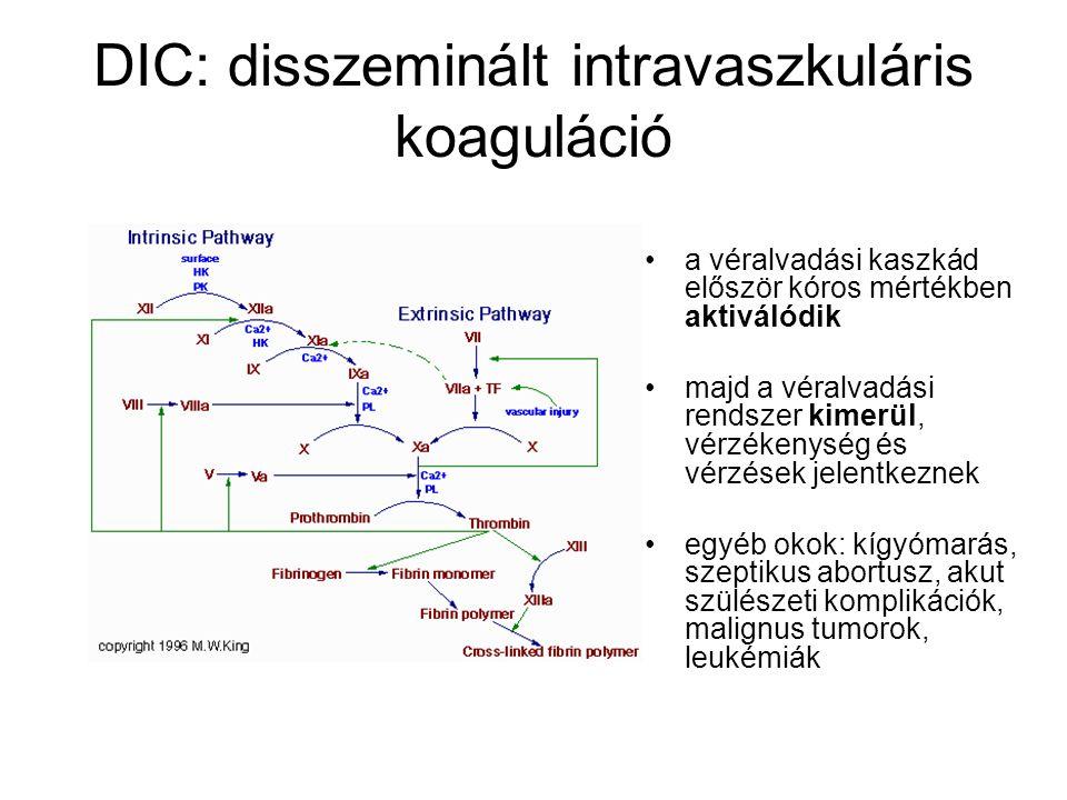 DIC: disszeminált intravaszkuláris koaguláció a véralvadási kaszkád először kóros mértékben aktiválódik majd a véralvadási rendszer kimerül, vérzékeny