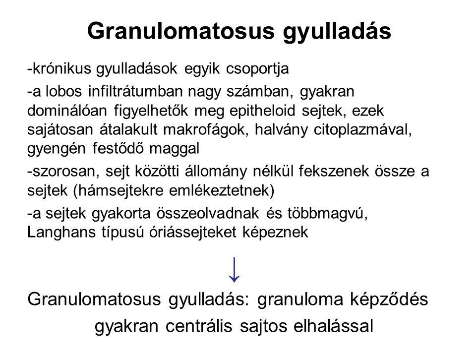 Granulomatosus gyulladás -krónikus gyulladások egyik csoportja -a lobos infiltrátumban nagy számban, gyakran dominálóan figyelhetők meg epitheloid sej