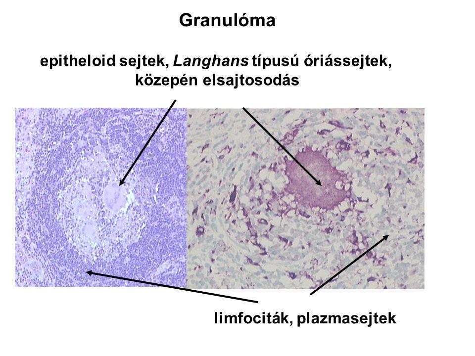 limfociták, plazmasejtek Granulóma epitheloid sejtek, Langhans típusú óriássejtek, közepén elsajtosodás