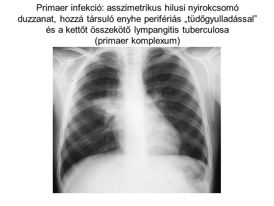 """Primaer infekció: asszimetrikus hilusi nyirokcsomó duzzanat, hozzá társuló enyhe perifériás """"tüdőgyulladással"""" és a kettőt összekötő lympangitis tuber"""
