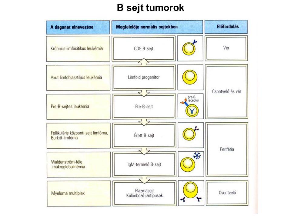 B sejt tumorok