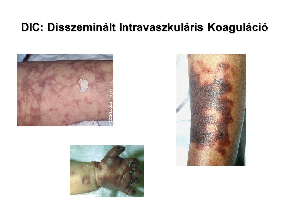 DIC: Disszeminált Intravaszkuláris Koaguláció