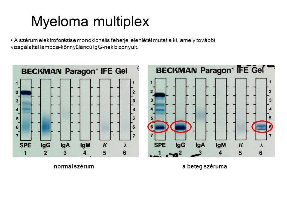 A szérum elektroforézise monoklonális fehérje jelenlétét mutatja ki, amely további vizsgálattal lambda-könnyűláncú IgG-nek bizonyult. normál szérum a