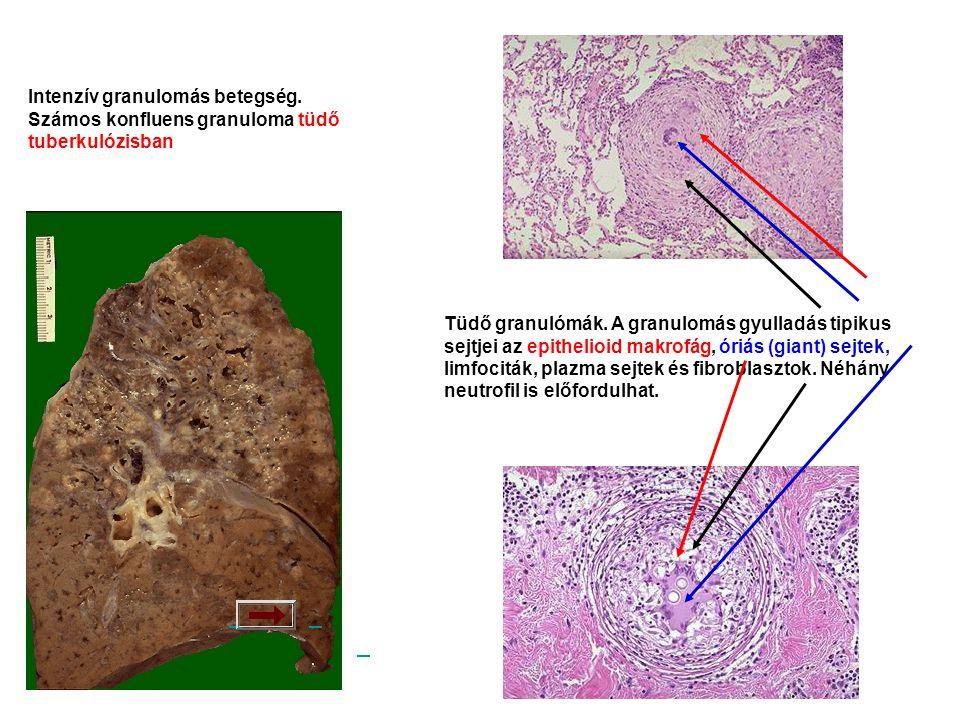 Intenzív granulomás betegség.Számos konfluens granuloma tüdő tuberkulózisban Tüdő granulómák.
