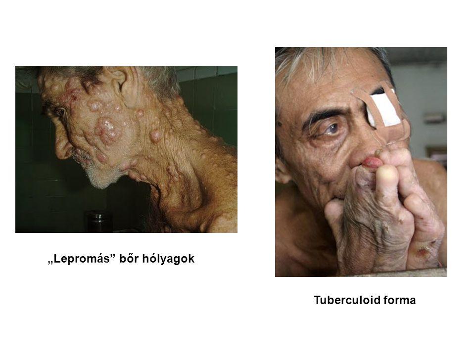 """Lepromás"" bőr hólyagok Tuberculoid forma"