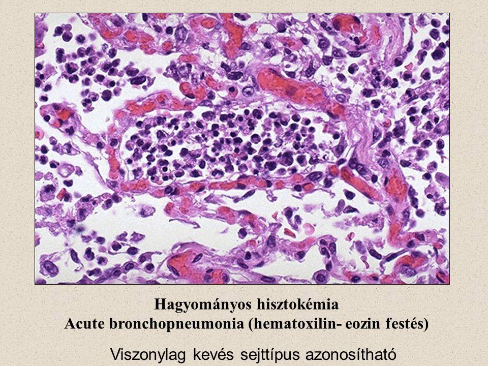 Hagyományos hisztokémia Acute bronchopneumonia (hematoxilin- eozin festés) Viszonylag kevés sejttípus azonosítható