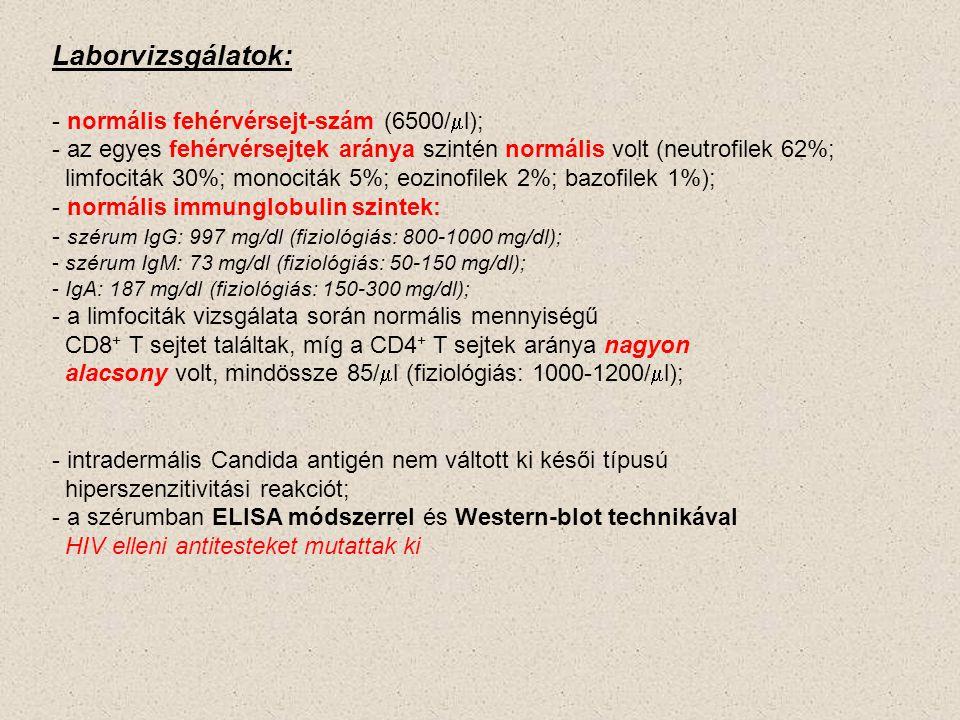 Laborvizsgálatok: - normális fehérvérsejt-szám (6500/  l); - az egyes fehérvérsejtek aránya szintén normális volt (neutrofilek 62%; limfociták 30%; m