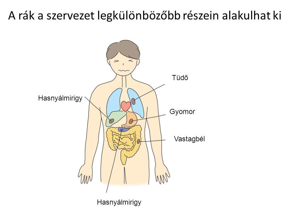 A rák a szervezet legkülönbözőbb részein alakulhat ki Hasnyálmirigy Tüdő Gyomor Vastagbél Hasnyálmirigy