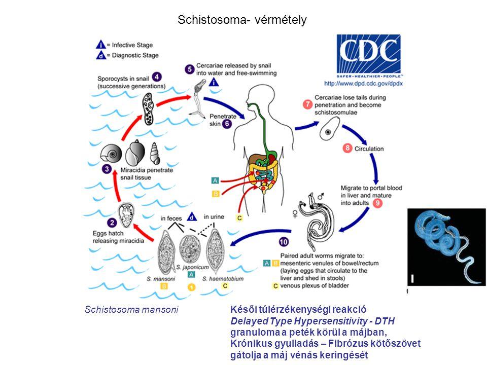 Schistosoma- vérmétely Schistosoma mansoniKésői túlérzékenységi reakció Delayed Type Hypersensitivity - DTH granuloma a peték körül a májban, Krónikus