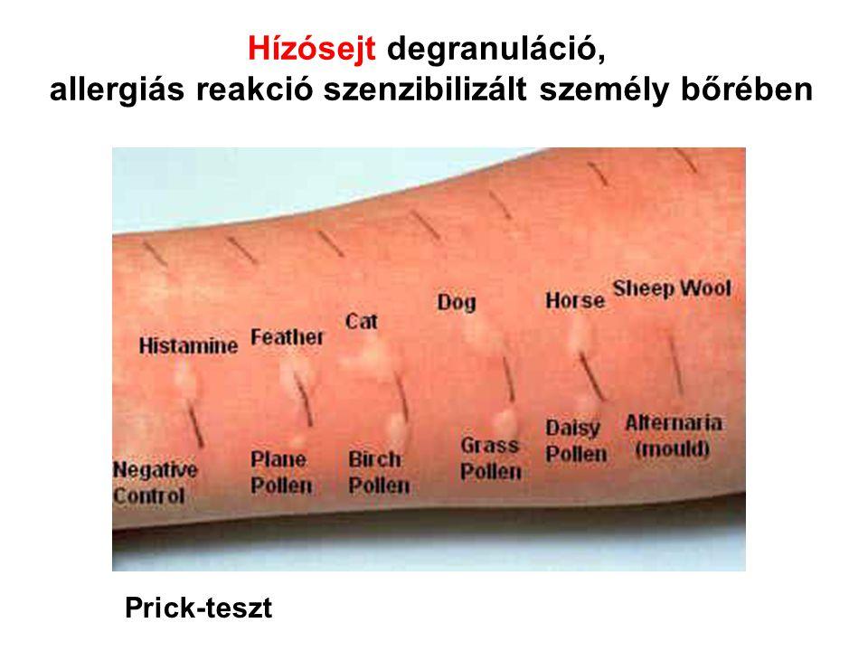 Hízósejt degranuláció, allergiás reakció szenzibilizált személy bőrében Prick-teszt