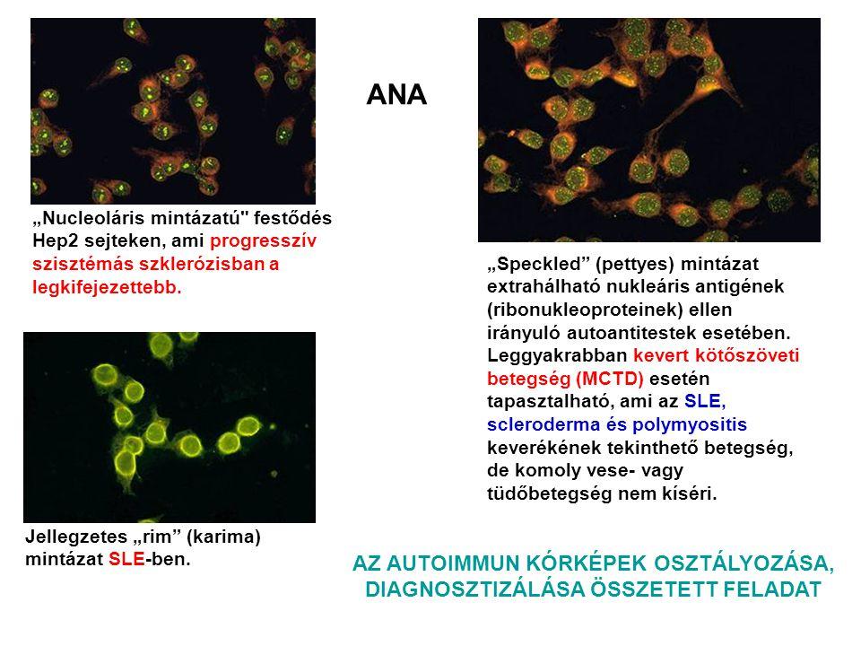 """Jellegzetes """"rim"""" (karima) mintázat SLE-ben. """"Speckled"""" (pettyes) mintázat extrahálható nukleáris antigének (ribonukleoproteinek) ellen irányuló autoa"""