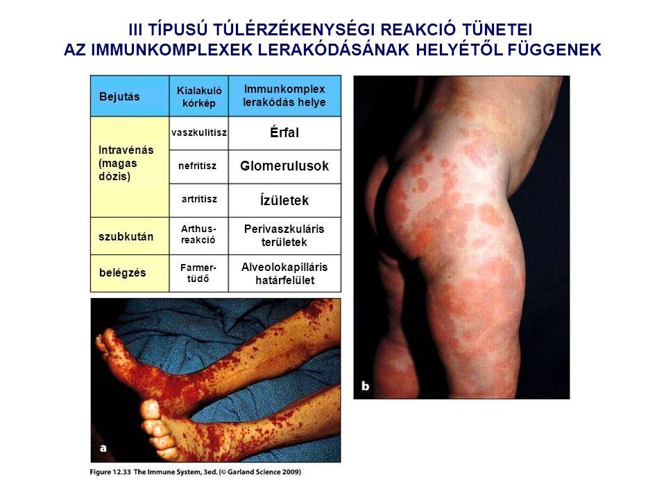 III TÍPUSÚ TÚLÉRZÉKENYSÉGI REAKCIÓ TÜNETEI AZ IMMUNKOMPLEXEK LERAKÓDÁSÁNAK HELYÉTŐL FÜGGENEK Intravénás (magas dózis) szubkután belégzés Bejutás Kialakuló kórkép Immunkomplex lerakódás helye vaszkulitisz nefritisz artritisz Arthus- reakció Farmer- tüdő Érfal Glomerulusok Ízületek Perivaszkuláris területek Alveolokapilláris határfelület
