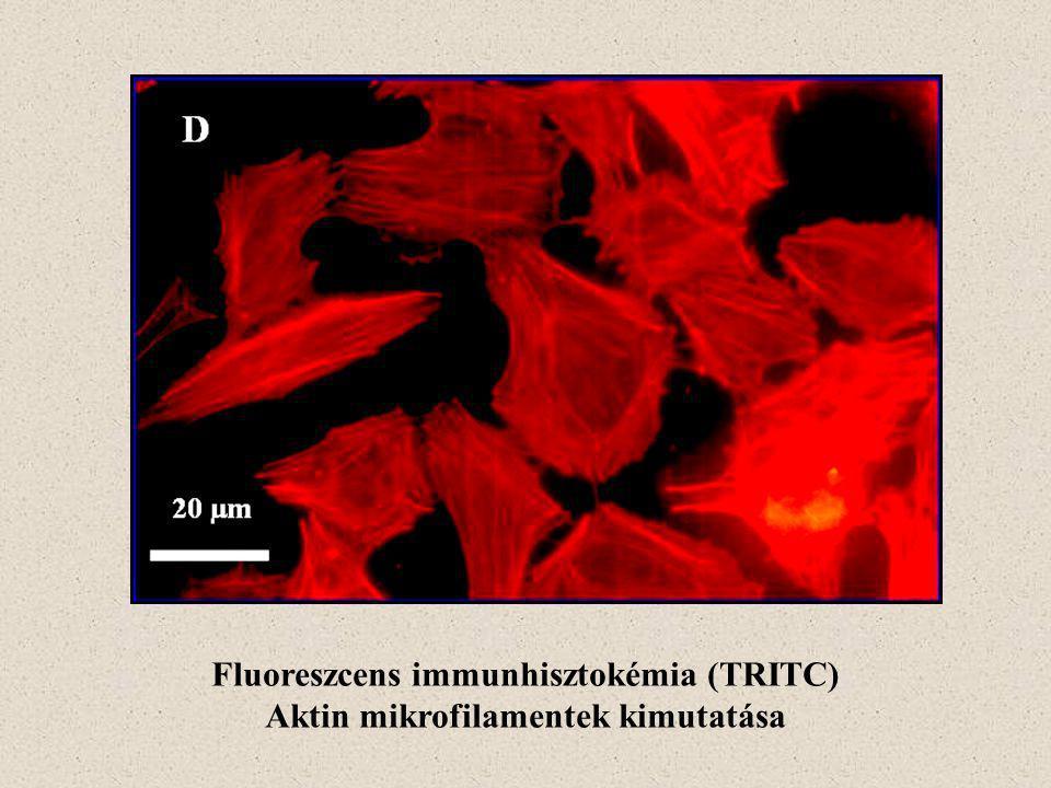 Fluoreszcens immunhisztokémia (TRITC) Aktin mikrofilamentek kimutatása