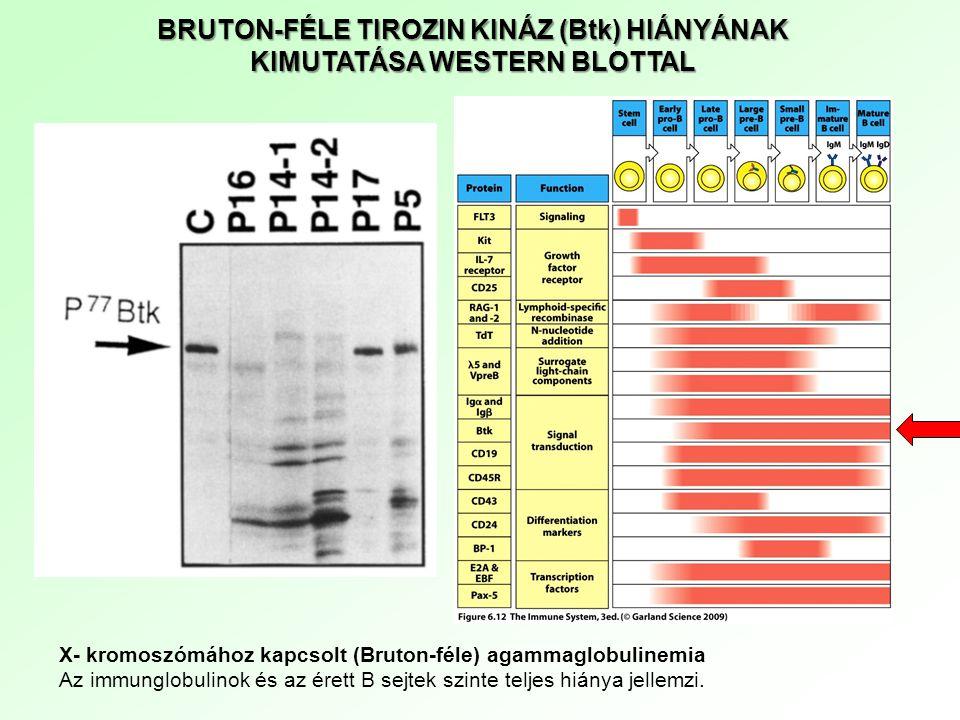 BRUTON-FÉLE TIROZIN KINÁZ (Btk) HIÁNYÁNAK KIMUTATÁSA WESTERN BLOTTAL X- kromoszómához kapcsolt (Bruton-féle) agammaglobulinemia Az immunglobulinok és