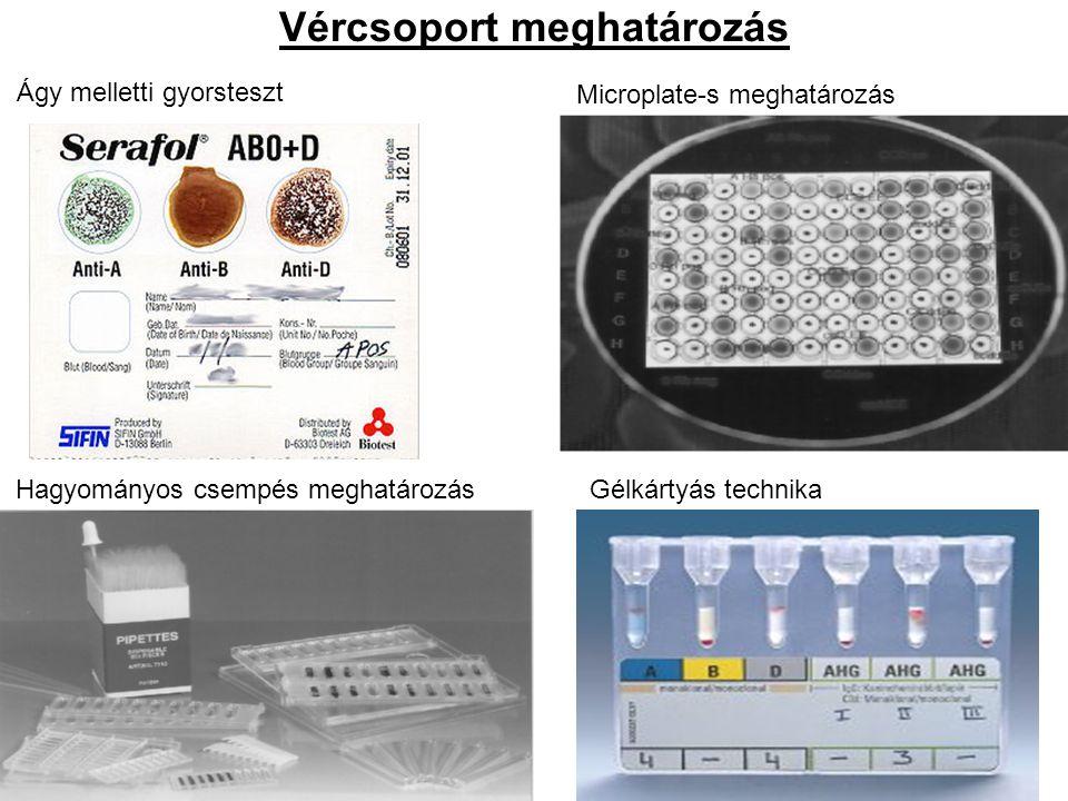 Vércsoport meghatározás Ágy melletti gyorsteszt Microplate-s meghatározás Hagyományos csempés meghatározásGélkártyás technika