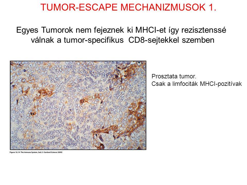 Egyes Tumorok nem fejeznek ki MHCI-et így rezisztenssé válnak a tumor-specifikus CD8-sejtekkel szemben Prosztata tumor. Csak a limfociták MHCI-pozitív