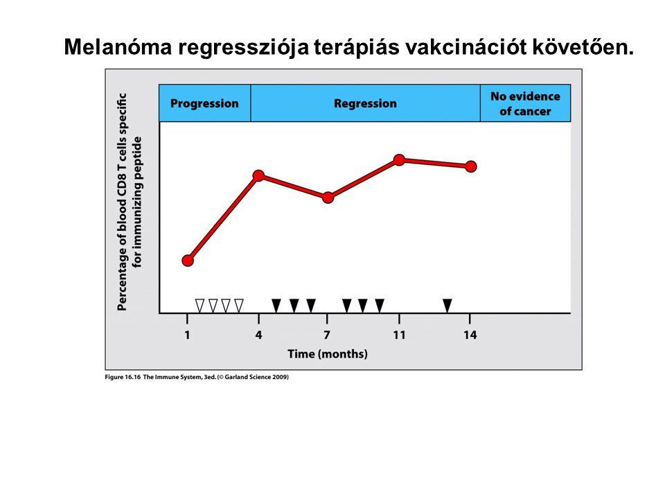 Melanóma regressziója terápiás vakcinációt követően.
