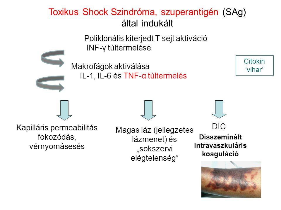 Poliklonális kiterjedt T sejt aktiváció INF-γ túltermelése Makrofágok aktiválása IL-1, IL-6 és TNF-α túltermelés Citokin 'vihar' Toxikus Shock Szindró