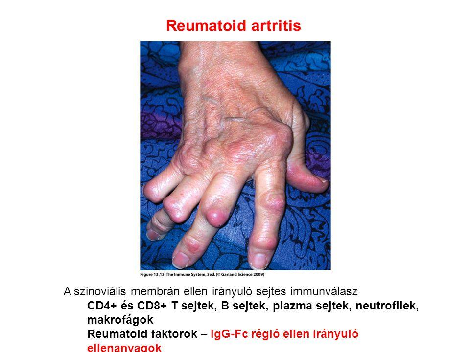 Reumatoid artritis A szinoviális membrán ellen irányuló sejtes immunválasz CD4+ és CD8+ T sejtek, B sejtek, plazma sejtek, neutrofilek, makrofágok Reumatoid faktorok – IgG-Fc régió ellen irányuló ellenanyagok