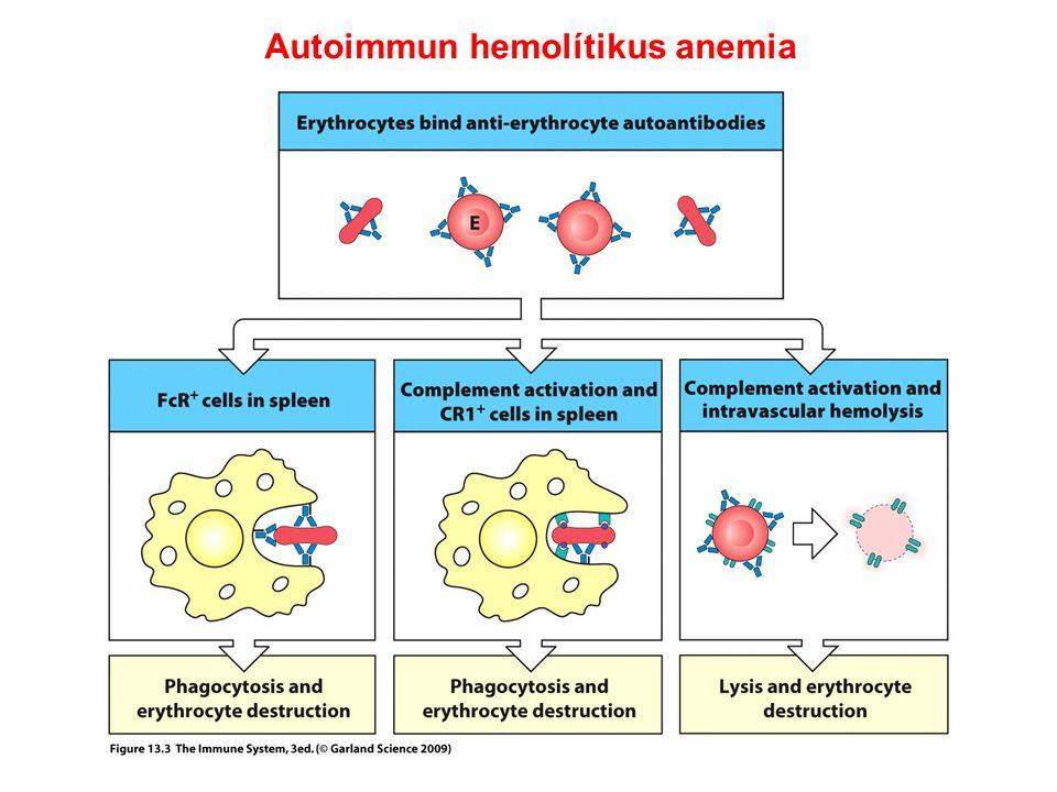 Goodpasture szindróma IgG lerakódás kimutatása immunfluoreszcenciával