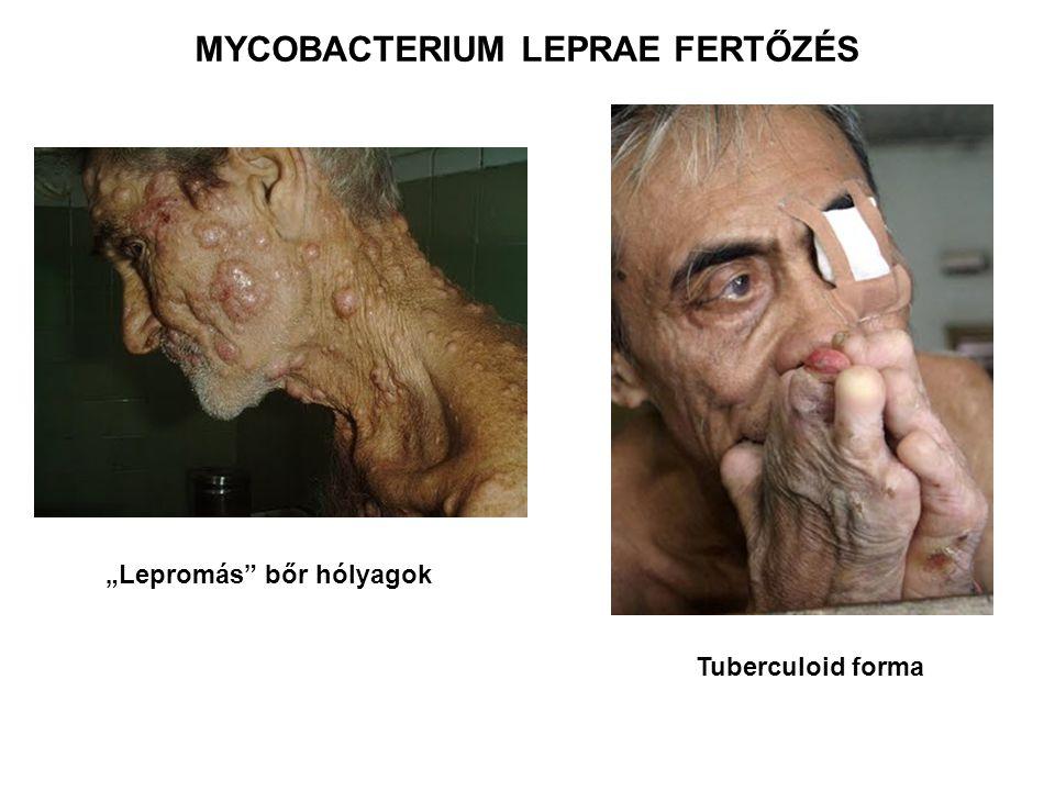 """""""Lepromás"""" bőr hólyagok Tuberculoid forma MYCOBACTERIUM LEPRAE FERTŐZÉS"""