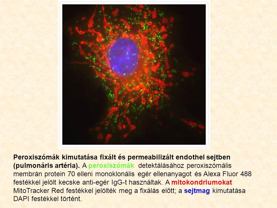 Peroxiszómák kimutatása fixált és permeabilizált endothel sejtben (pulmonáris artéria). A peroxiszómák detektálásához peroxiszómális membrán protein 7