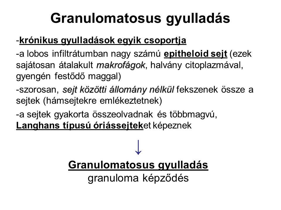 Granulomatosus gyulladás -krónikus gyulladások egyik csoportja makrofágok -a lobos infiltrátumban nagy számú epitheloid sejt (ezek sajátosan átalakult