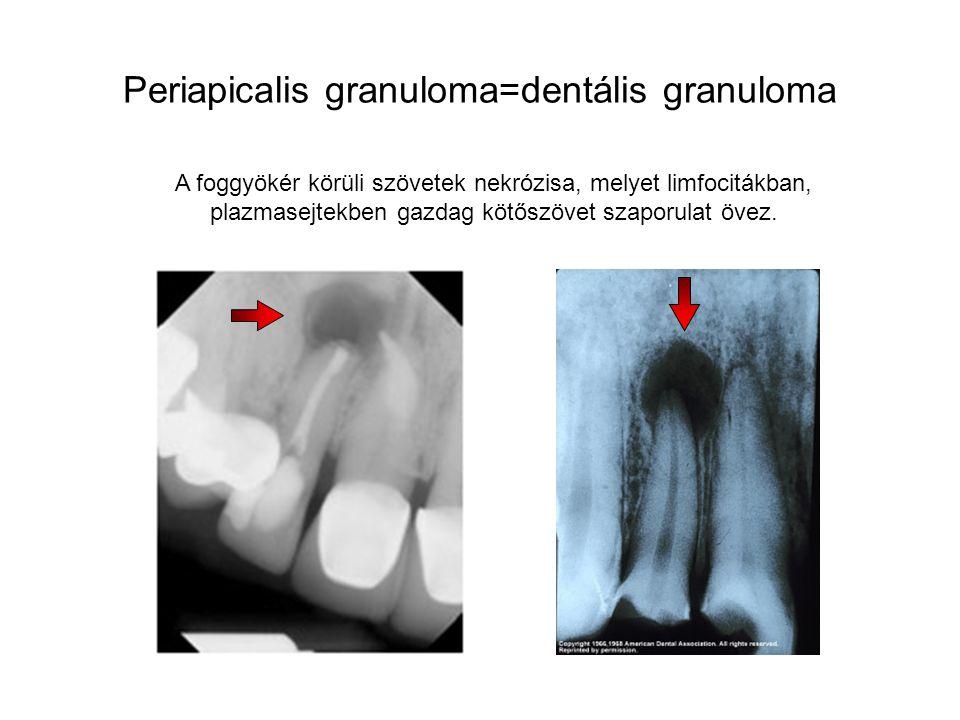 Periapicalis granuloma=dentális granuloma A foggyökér körüli szövetek nekrózisa, melyet limfocitákban, plazmasejtekben gazdag kötőszövet szaporulat öv